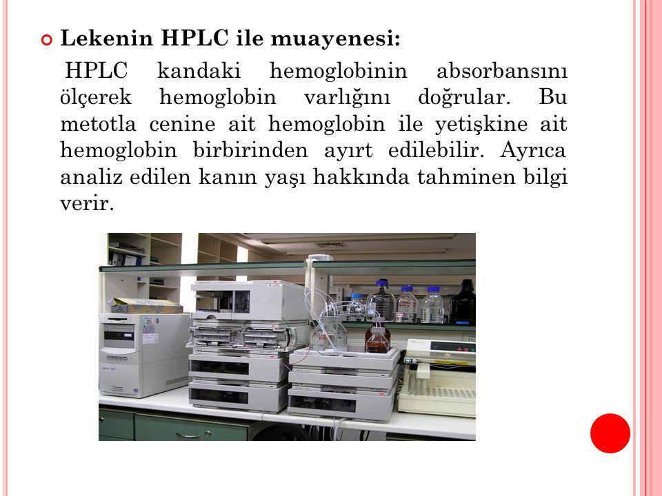 Lekenin HPLC ile muayenesi: