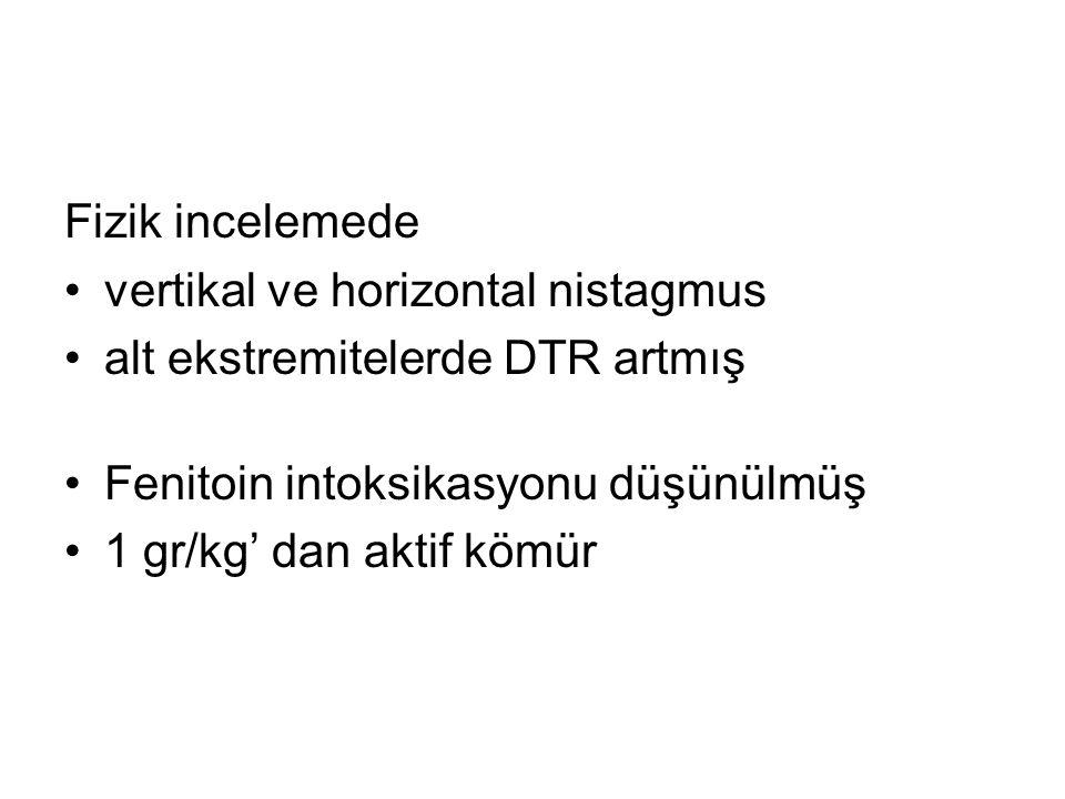 Fizik incelemede vertikal ve horizontal nistagmus. alt ekstremitelerde DTR artmış. Fenitoin intoksikasyonu düşünülmüş.