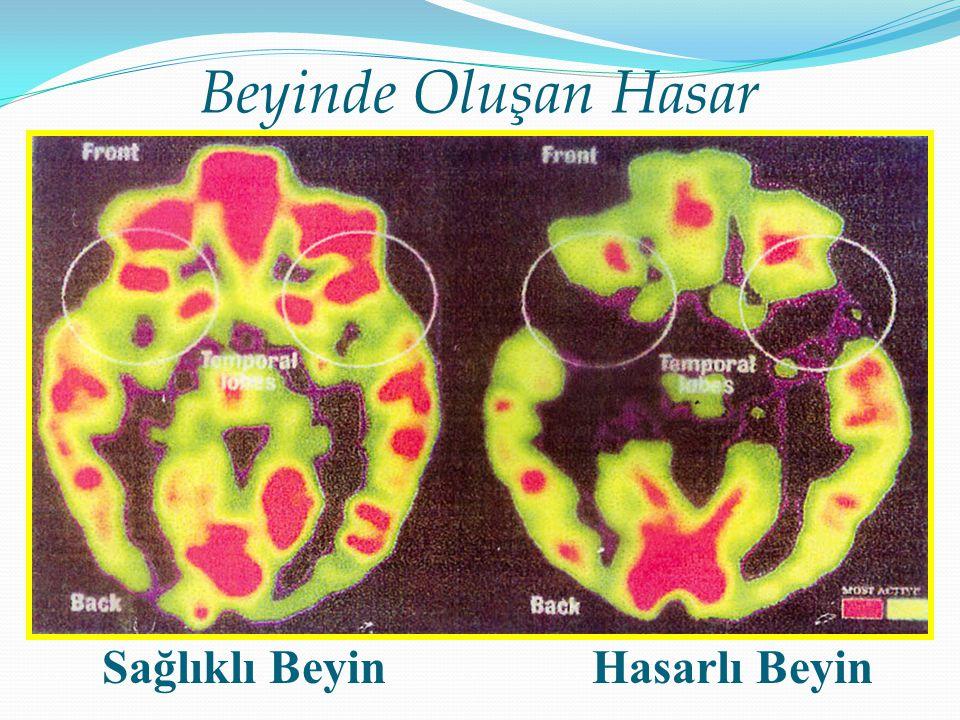 Beyinde Oluşan Hasar Sağlıklı Beyin Hasarlı Beyin 93