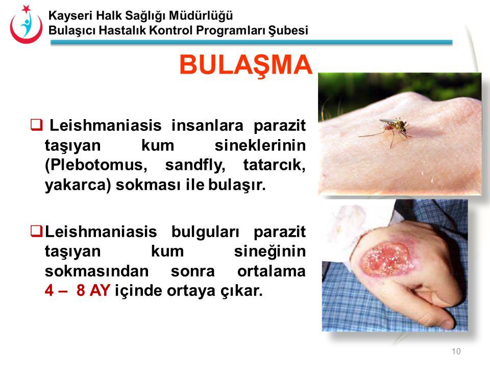 BULAŞMA Leishmaniasis insanlara parazit taşıyan kum sineklerinin (Plebotomus, sandfly, tatarcık, yakarca) sokması ile bulaşır.