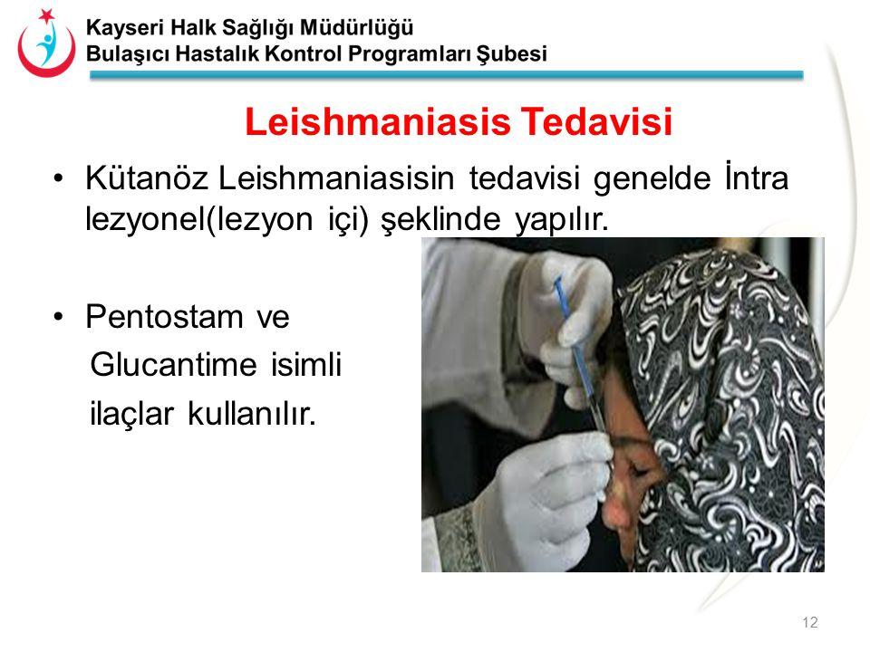 Leishmaniasis Tedavisi