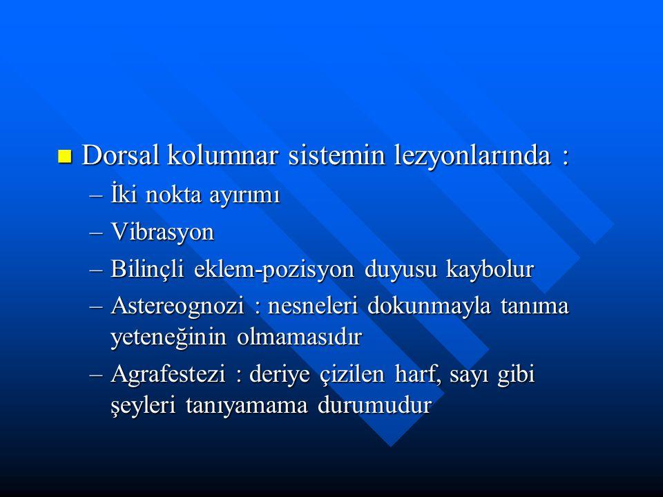 Dorsal kolumnar sistemin lezyonlarında :