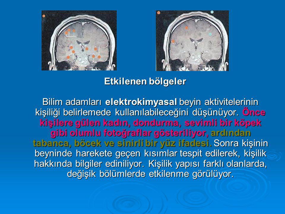 Etkilenen bölgeler Bilim adamları elektrokimyasal beyin aktivitelerinin kişiliği belirlemede kullanılabileceğini düşünüyor.
