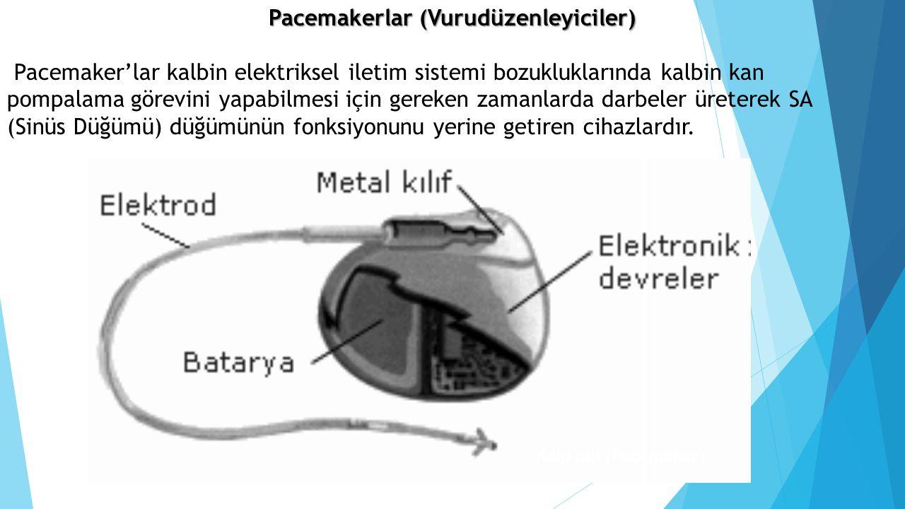 Pacemakerlar (Vurudüzenleyiciler)