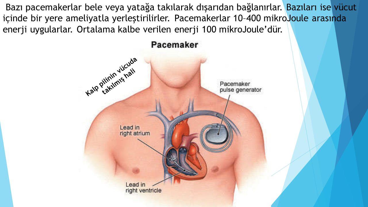 Bazı pacemakerlar bele veya yatağa takılarak dışarıdan bağlanırlar