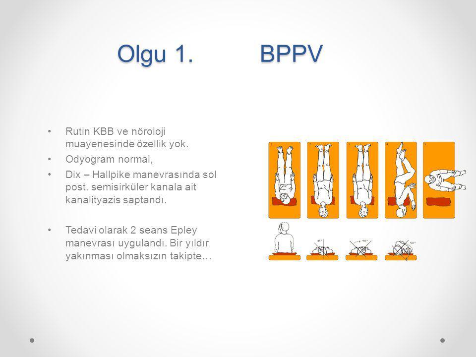 Olgu 1. BPPV Rutin KBB ve nöroloji muayenesinde özellik yok.