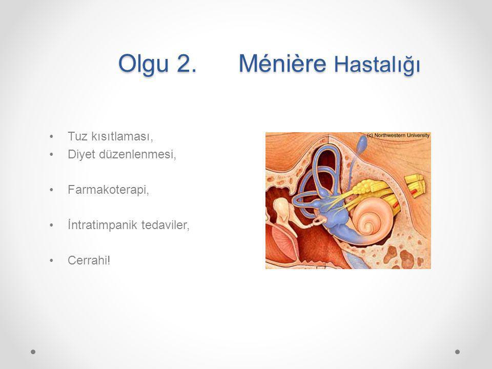 Olgu 2. Ménière Hastalığı