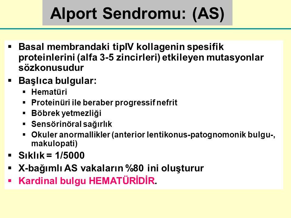 Alport Sendromu: (AS) Basal membrandaki tipIV kollagenin spesifik proteinlerini (alfa 3-5 zincirleri) etkileyen mutasyonlar sözkonusudur.