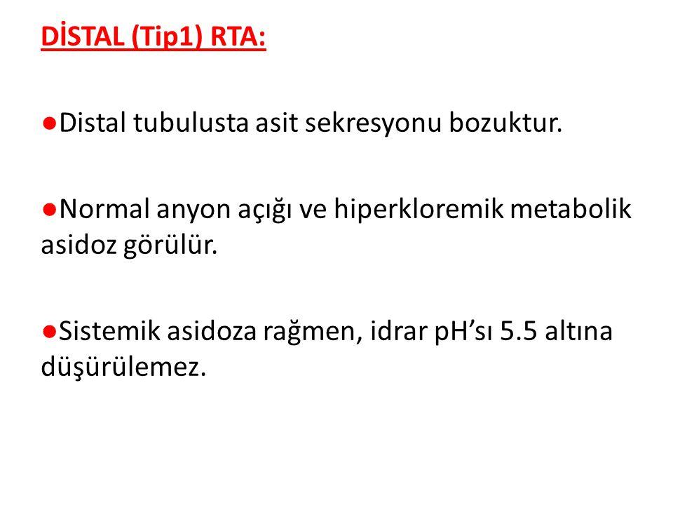 DİSTAL (Tip1) RTA: ●Distal tubulusta asit sekresyonu bozuktur