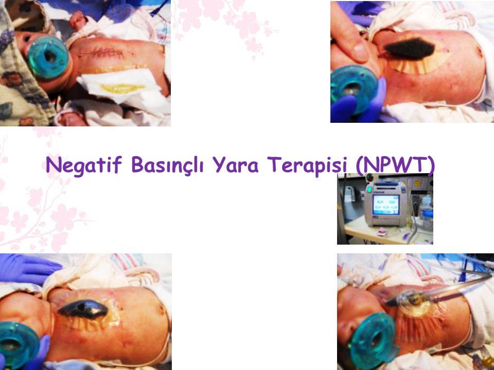 Negatif Basınçlı Yara Terapisi (NPWT)