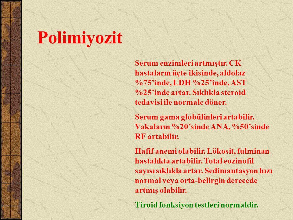 Polimiyozit