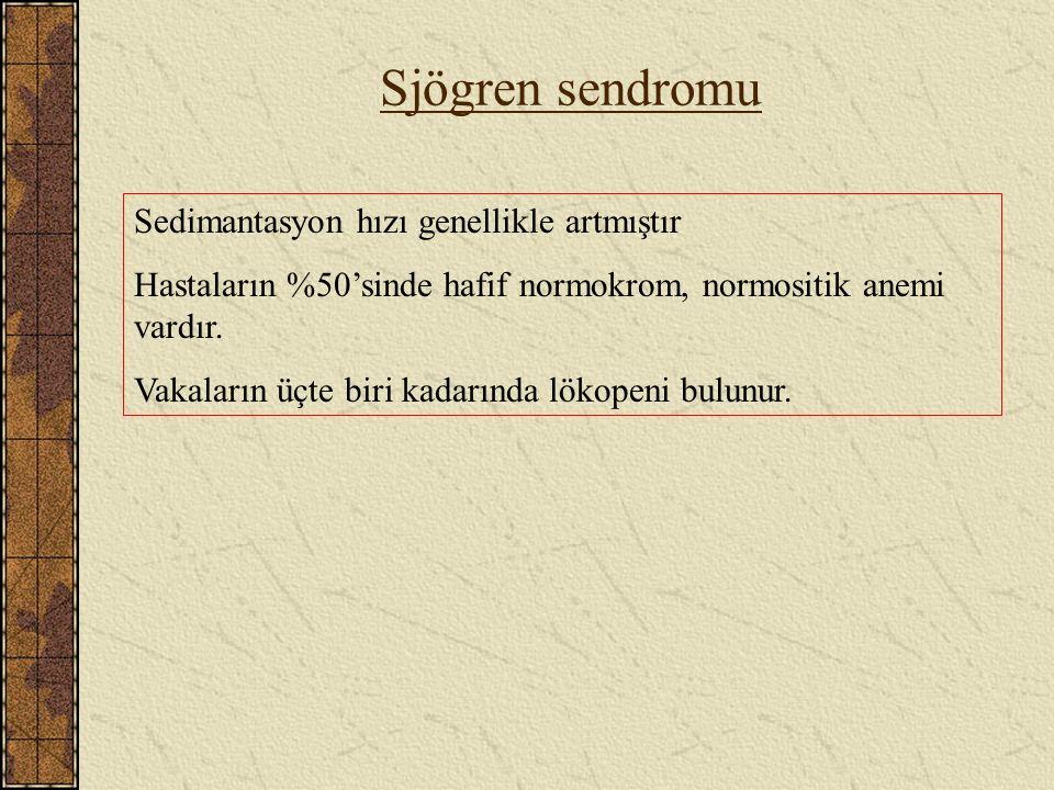 Sjögren sendromu Sedimantasyon hızı genellikle artmıştır
