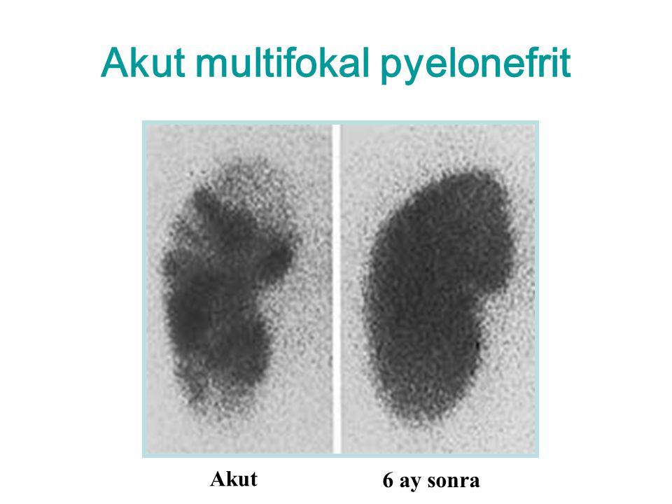 Akut multifokal pyelonefrit