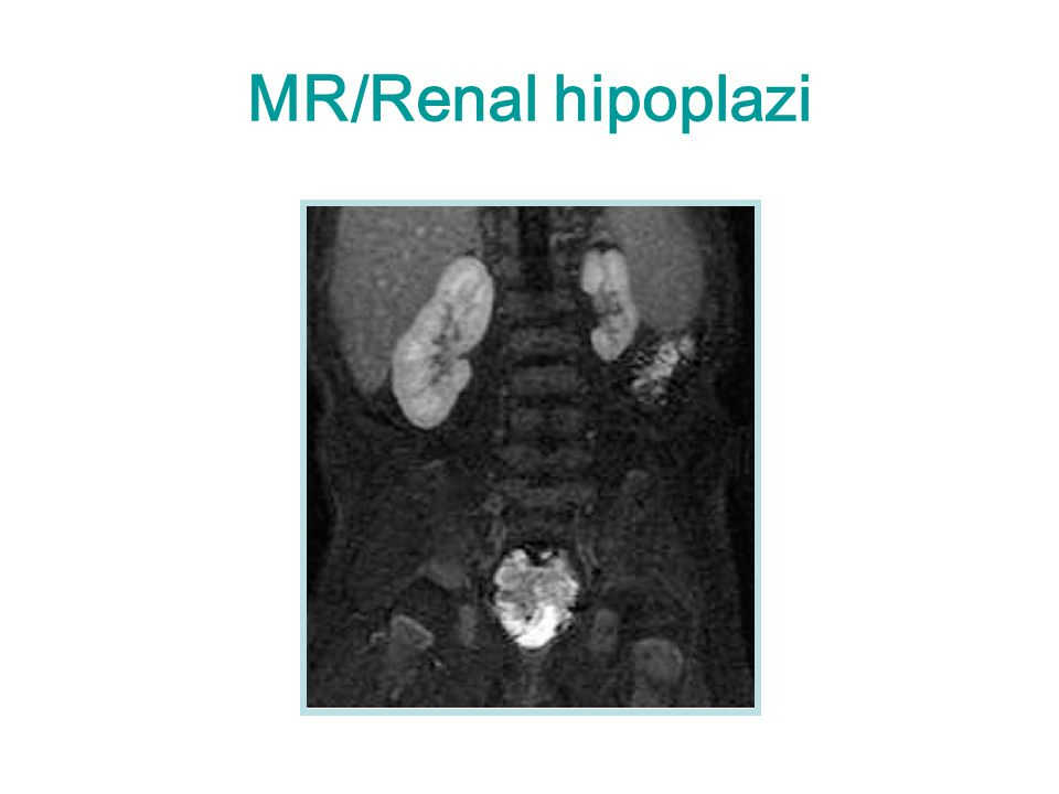 MR/Renal hipoplazi