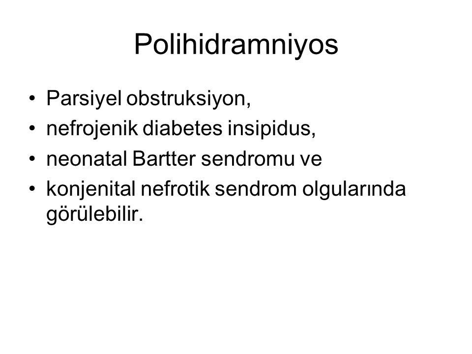 Polihidramniyos Parsiyel obstruksiyon, nefrojenik diabetes insipidus,