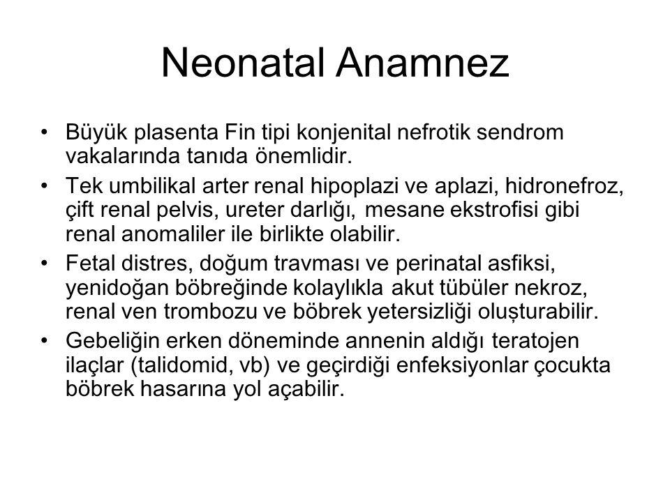 Neonatal Anamnez Büyük plasenta Fin tipi konjenital nefrotik sendrom vakalarında tanıda önemlidir.