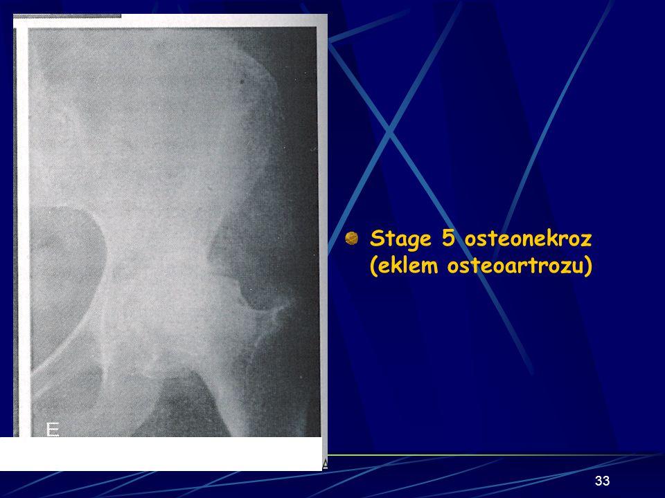 Stage 5 osteonekroz (eklem osteoartrozu)