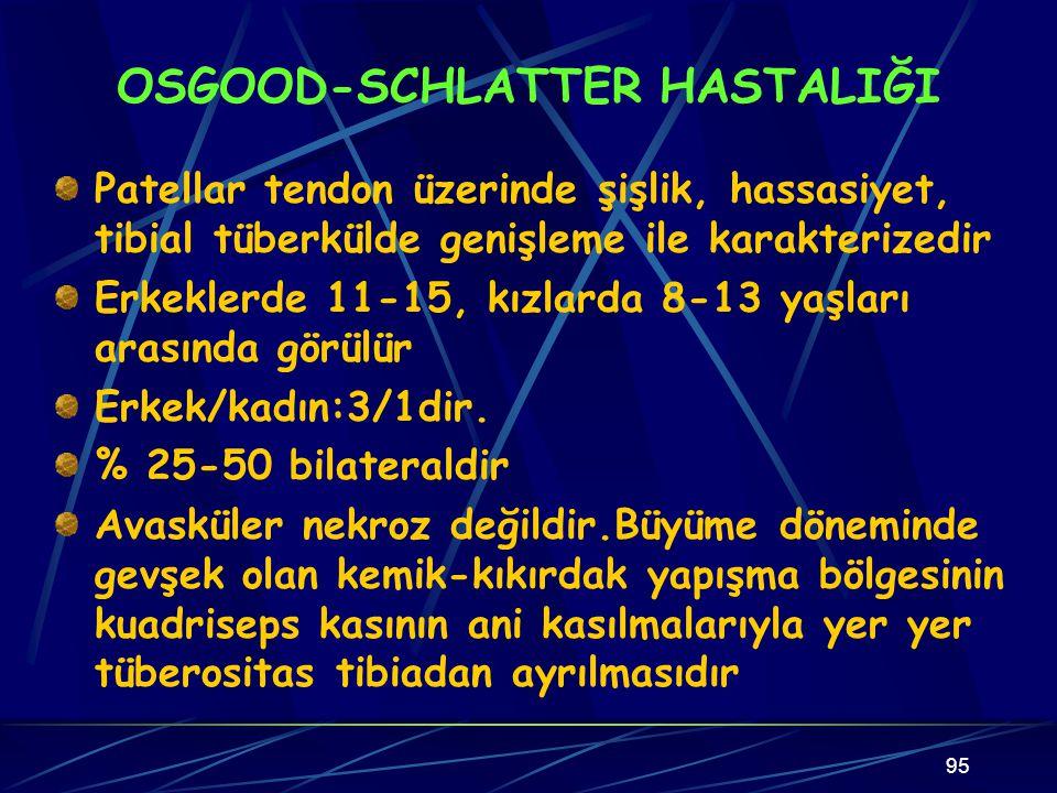 OSGOOD-SCHLATTER HASTALIĞI