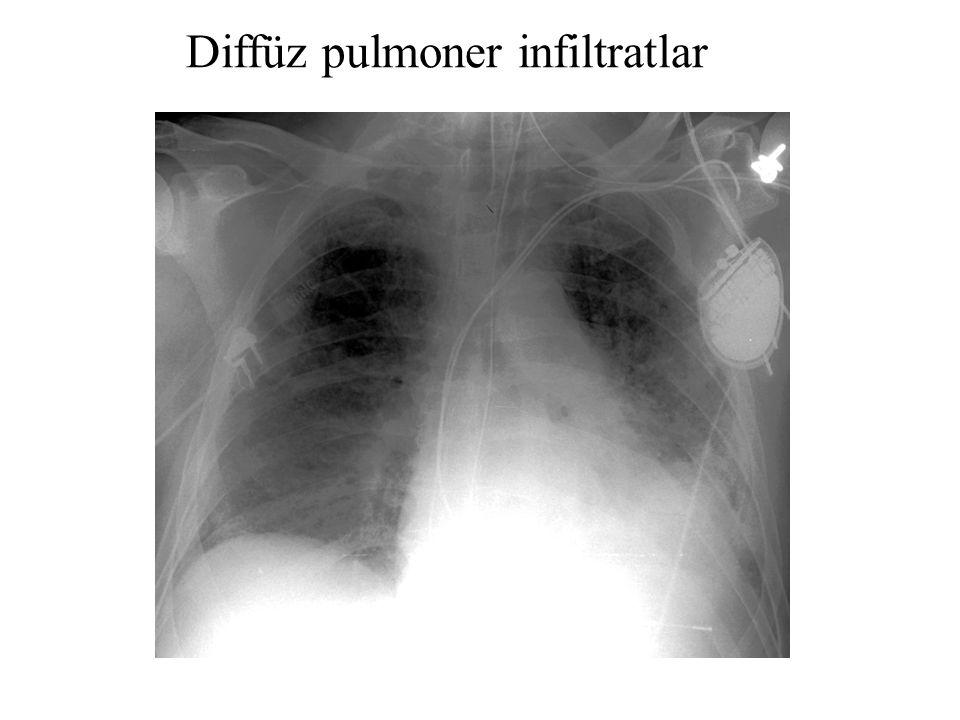 Diffüz pulmoner infiltratlar