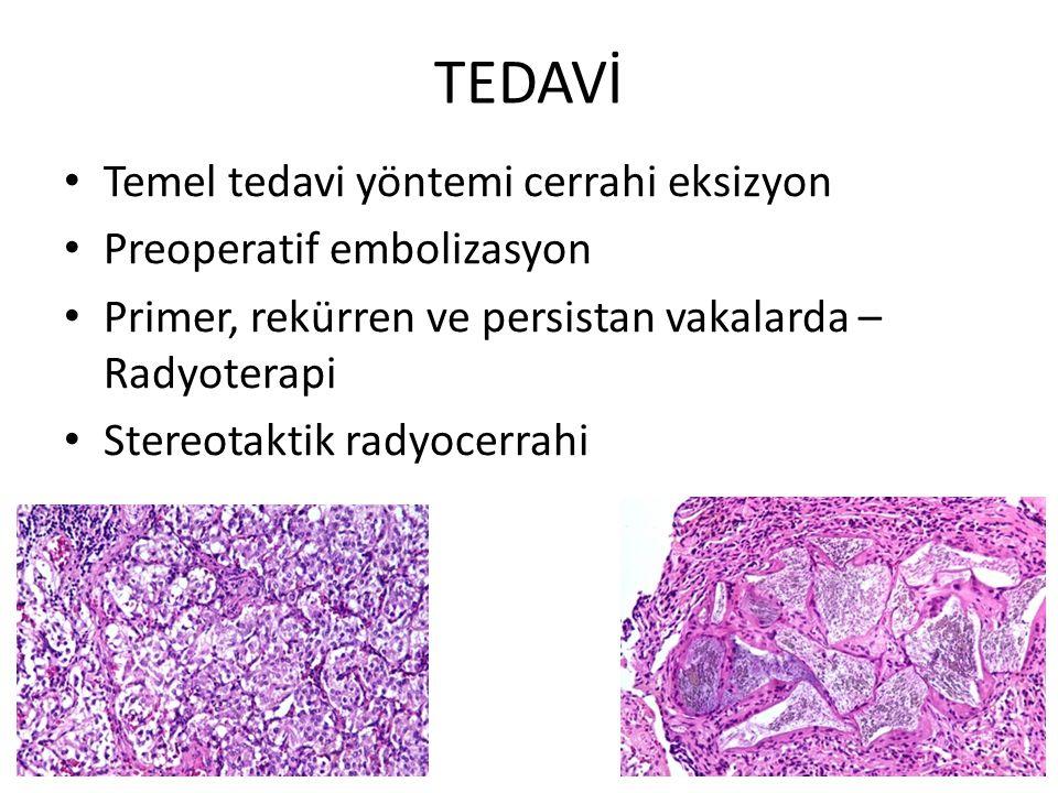 TEDAVİ Temel tedavi yöntemi cerrahi eksizyon Preoperatif embolizasyon