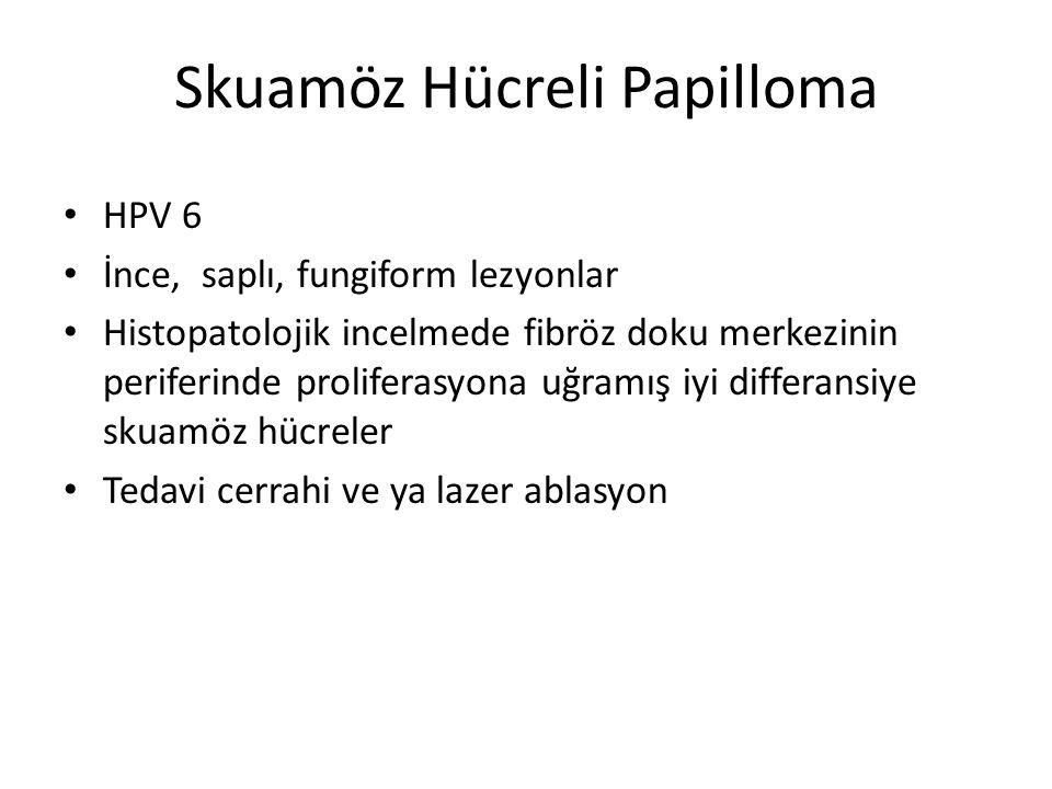 Skuamöz Hücreli Papilloma