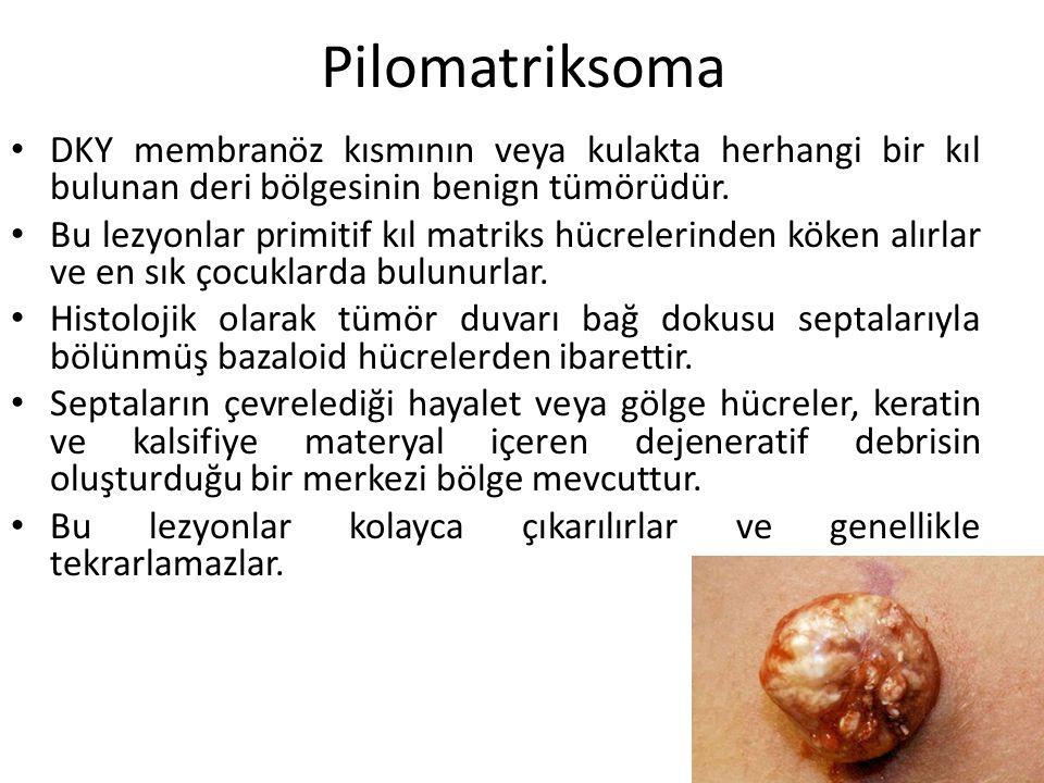 Pilomatriksoma DKY membranöz kısmının veya kulakta herhangi bir kıl bulunan deri bölgesinin benign tümörüdür.