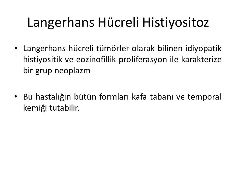 Langerhans Hücreli Histiyositoz