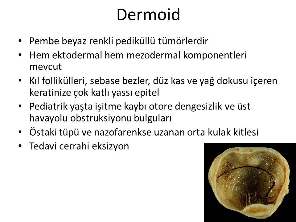 Dermoid Pembe beyaz renkli pediküllü tümörlerdir