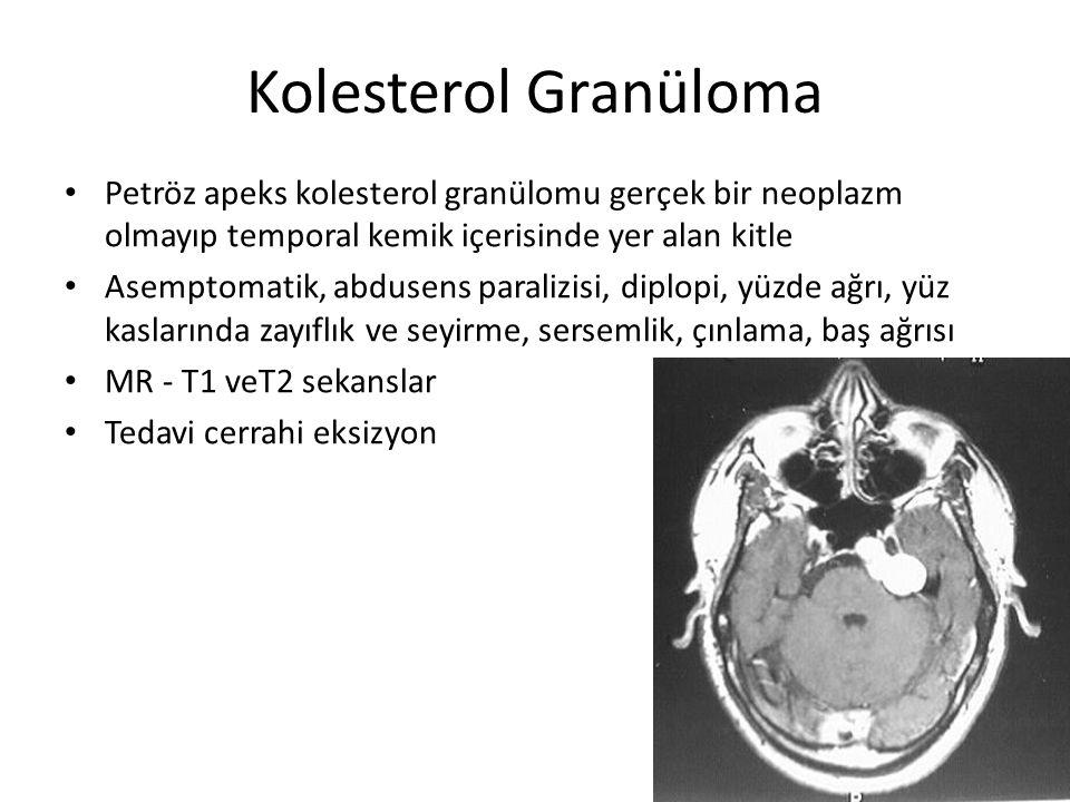 Kolesterol Granüloma Petröz apeks kolesterol granülomu gerçek bir neoplazm olmayıp temporal kemik içerisinde yer alan kitle.