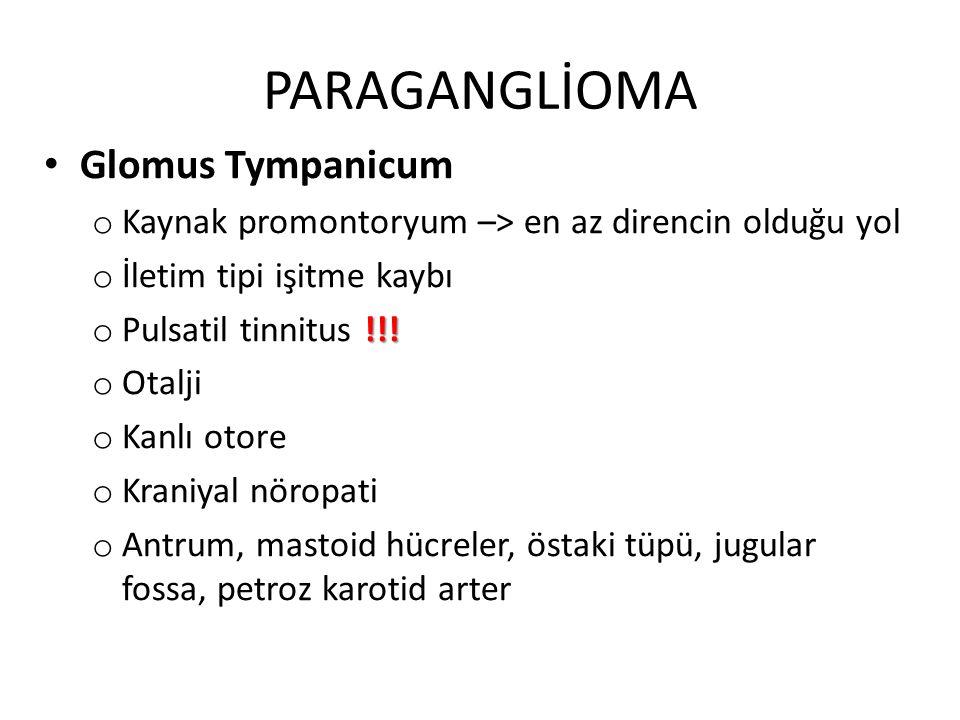 PARAGANGLİOMA Glomus Tympanicum