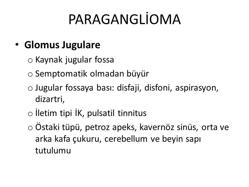 PARAGANGLİOMA Glomus Jugulare Kaynak jugular fossa