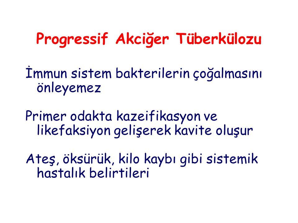 Progressif Akciğer Tüberkülozu