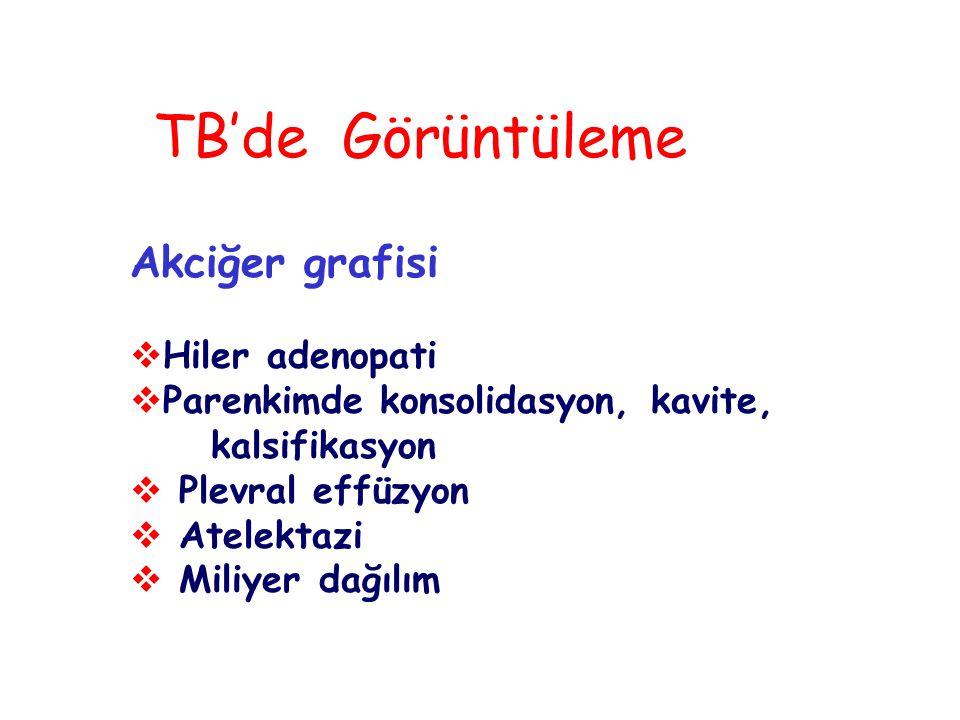 TB'de Görüntüleme Akciğer grafisi Hiler adenopati