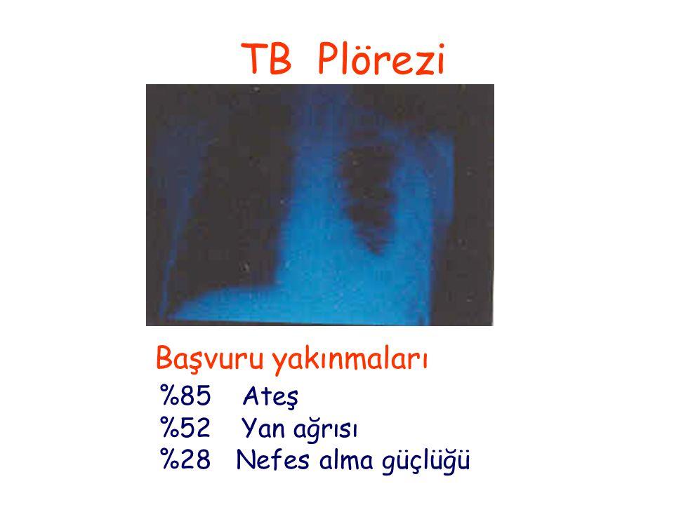 TB Plörezi Başvuru yakınmaları %85 Ateş %52 Yan ağrısı