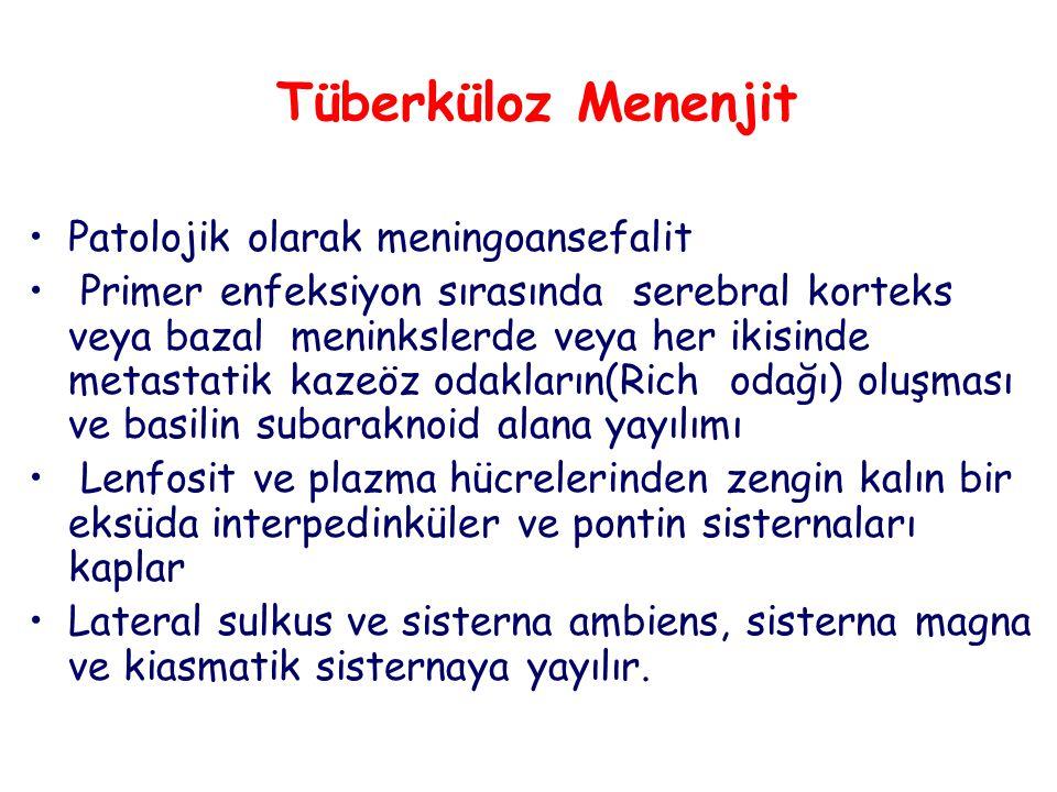 Tüberküloz Menenjit Patolojik olarak meningoansefalit