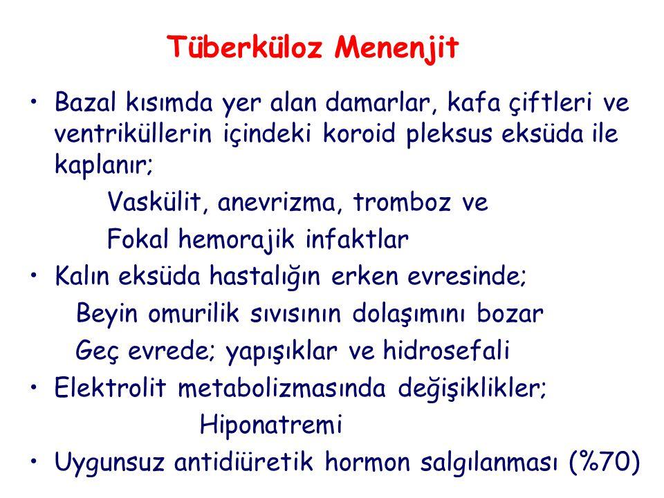 Tüberküloz Menenjit Bazal kısımda yer alan damarlar, kafa çiftleri ve ventriküllerin içindeki koroid pleksus eksüda ile kaplanır;
