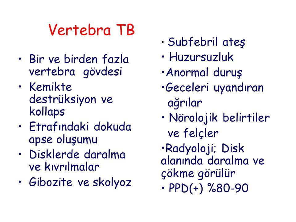 Vertebra TB Huzursuzluk Anormal duruş