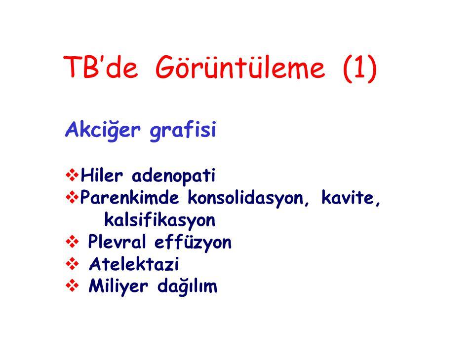 TB'de Görüntüleme (1) Akciğer grafisi Hiler adenopati