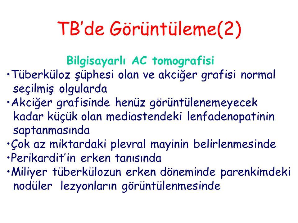 TB'de Görüntüleme(2) Bilgisayarlı AC tomografisi