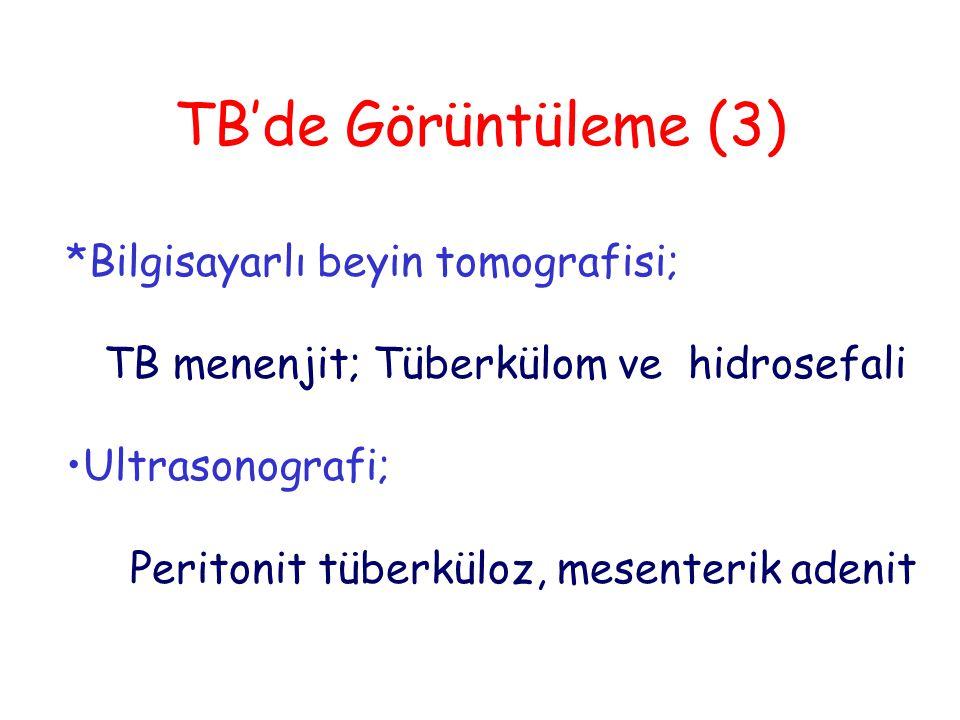 TB'de Görüntüleme (3) *Bilgisayarlı beyin tomografisi;
