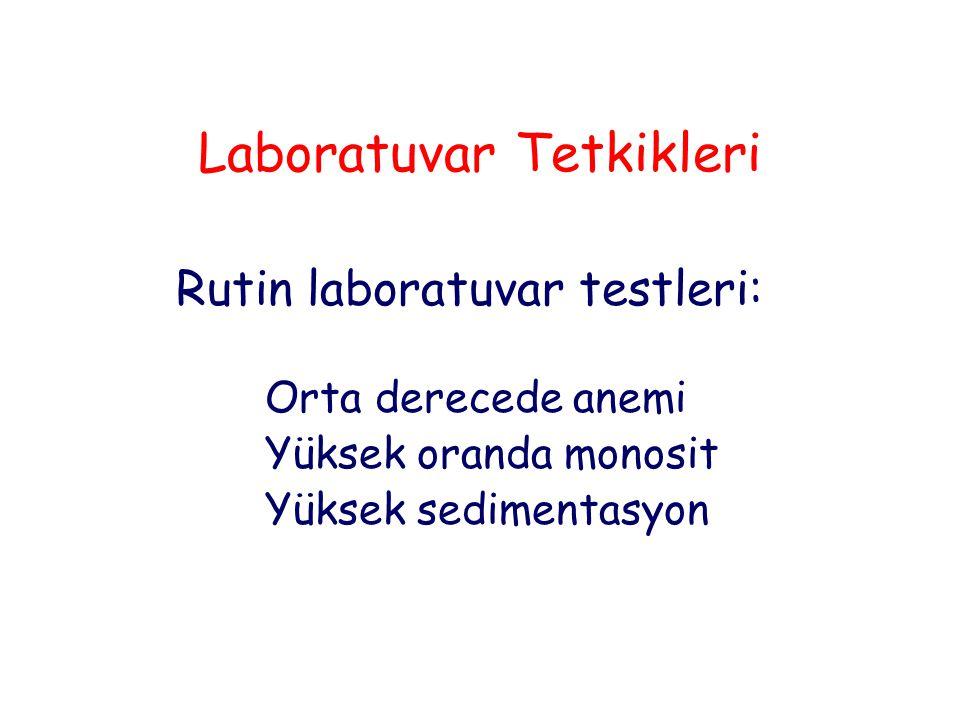 Laboratuvar Tetkikleri
