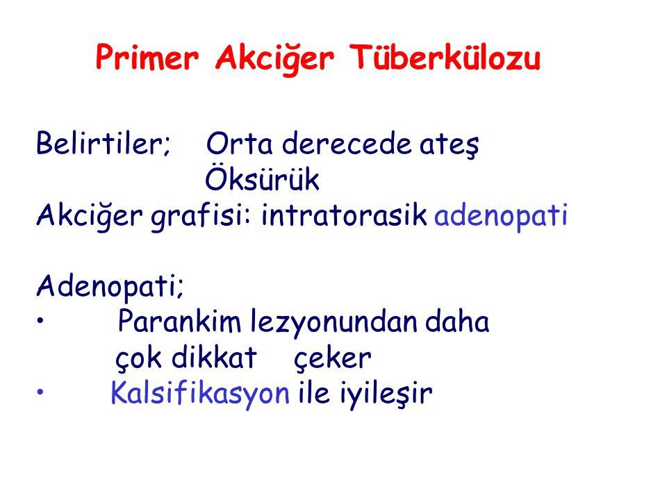 Primer Akciğer Tüberkülozu