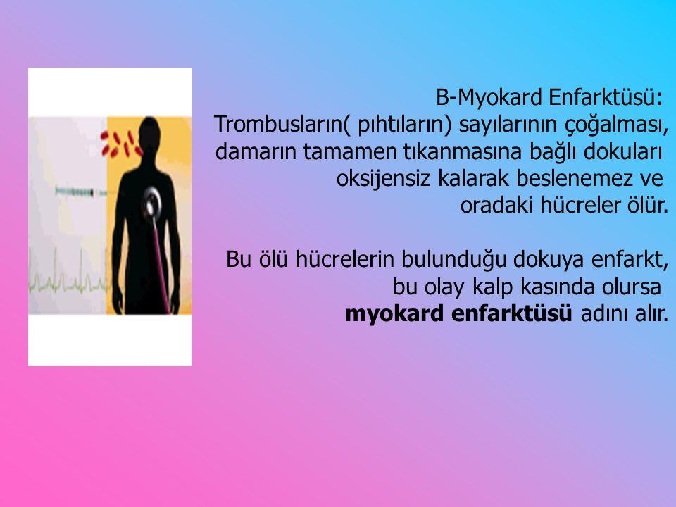 B-Myokard Enfarktüsü: