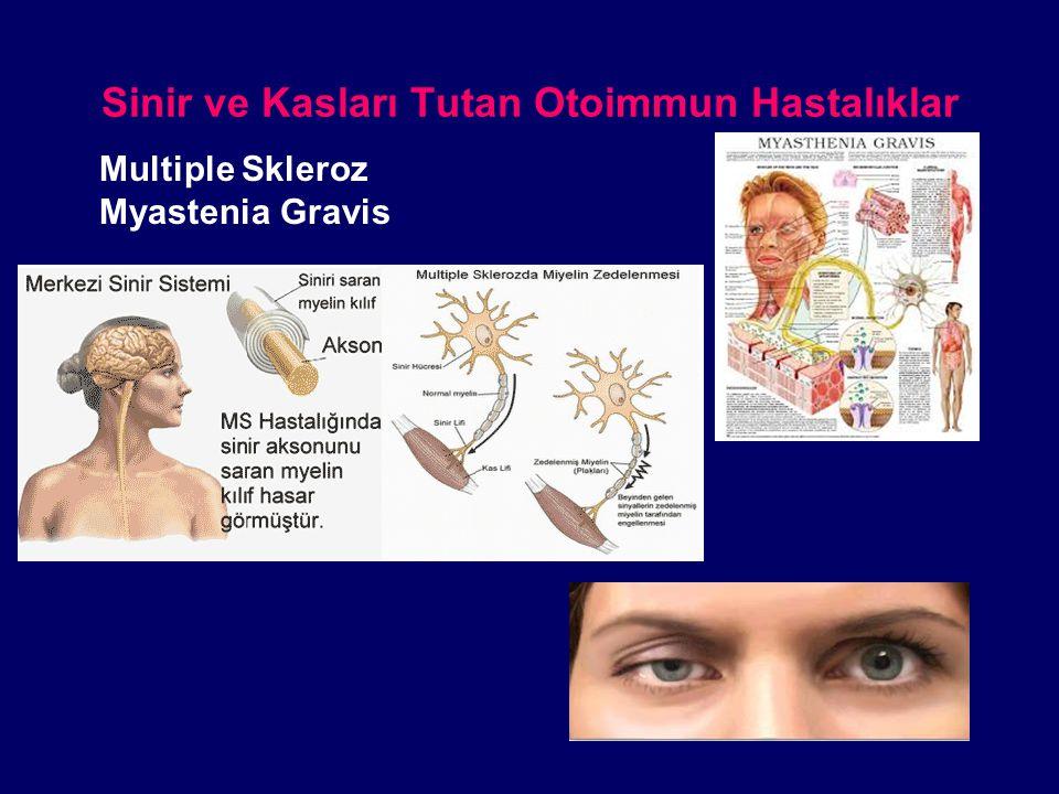 Sinir ve Kasları Tutan Otoimmun Hastalıklar