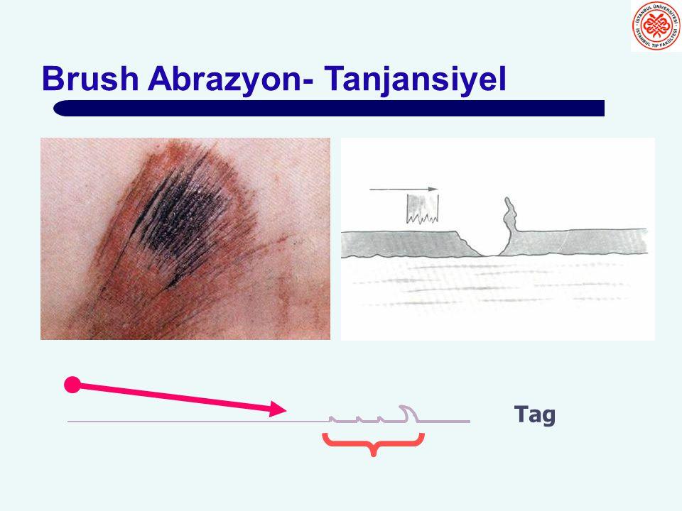 Brush Abrazyon- Tanjansiyel