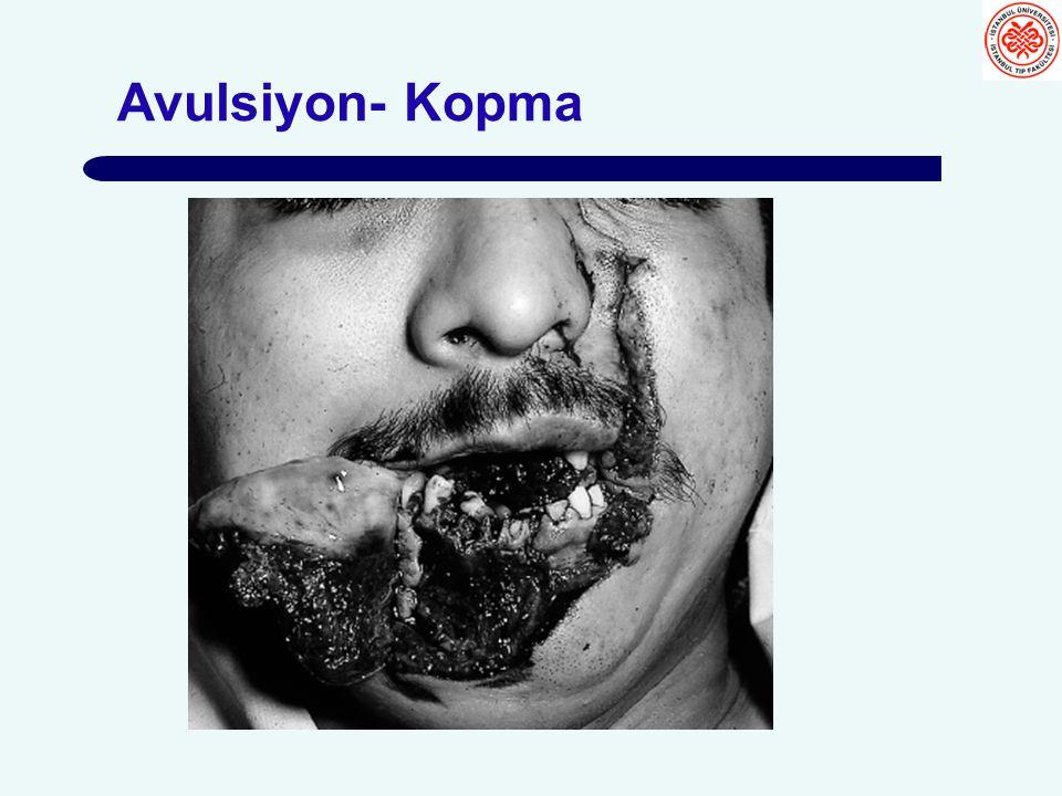 Avulsiyon- Kopma