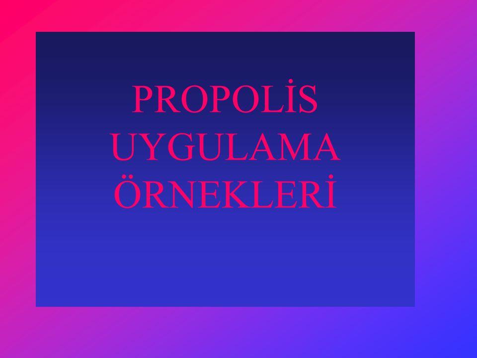 PROPOLİS UYGULAMA ÖRNEKLERİ