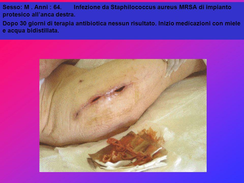 Sesso: M . Anni : 64. Infezione da Staphilococcus aureus MRSA di impianto protesico all'anca destra.