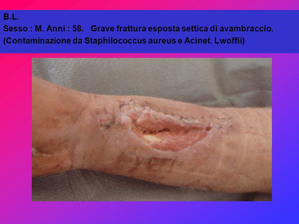 B.L. Sesso : M. Anni : 58. Grave frattura esposta settica di avambraccio.