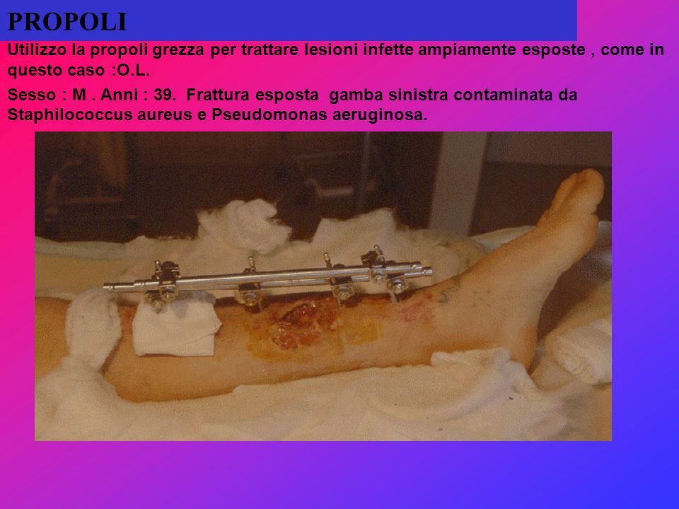 PROPOLI Utilizzo la propoli grezza per trattare lesioni infette ampiamente esposte , come in questo caso :O.L.